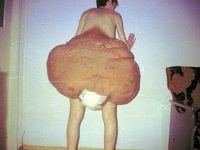 Extirpado el tumor más grande del mundo
